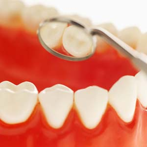 เชื่อหรือไม่, สุขภาพฟัน,ตรวจสุขภาพฟัน, ฟัน, ดูแลฟัน, ปาก, ช่องปาก